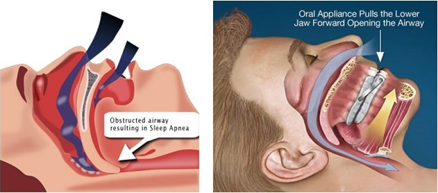 Obstructive Sleep Apnea Lebanon